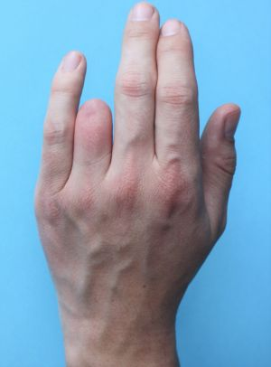 Silikon Fingerprothese 04_s